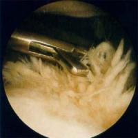 Arthrose Gelenksarthroskopie