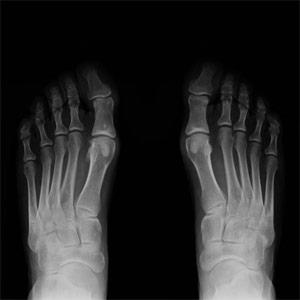 Hallux Valgus Röntgenaufnahme