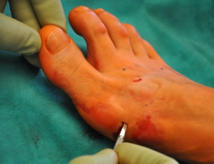 Minimal invasive Operationsmethode (Hallux Valgus)