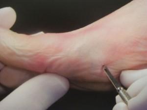 Veranschaulichung minimal invasive Fußchirurgie