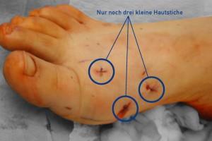 hallux-valgus-minimal-invasive-fusschirurgie